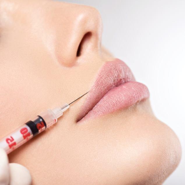 Lippenvergrößerung bei Dr. med. Karsten Lange in Berlin